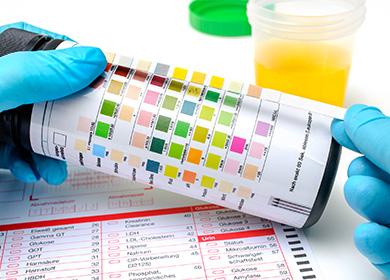 Следы белка в моче при беременности – профилактика и прогнозы